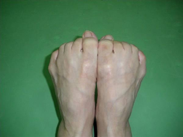腳趾運動2