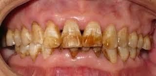 牙垢.jpg