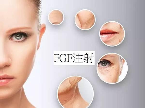 FGF注射.jpg