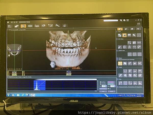 IMG_3980-3D斷層掃描圖.JPEG