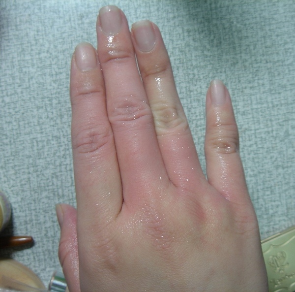 2009.04.17-燙傷.jpg