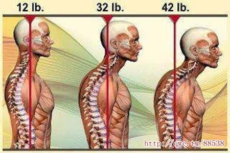 頭往前1吋,脖子多承重9公斤