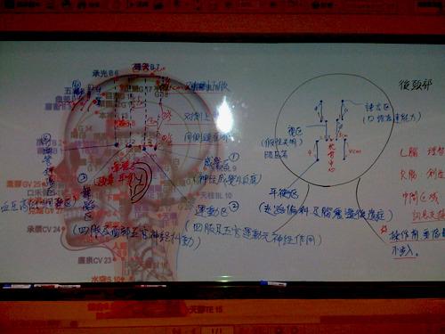 brain-1s.jpg