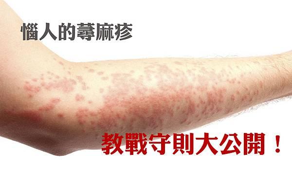 惱人的蕁麻疹.jpg