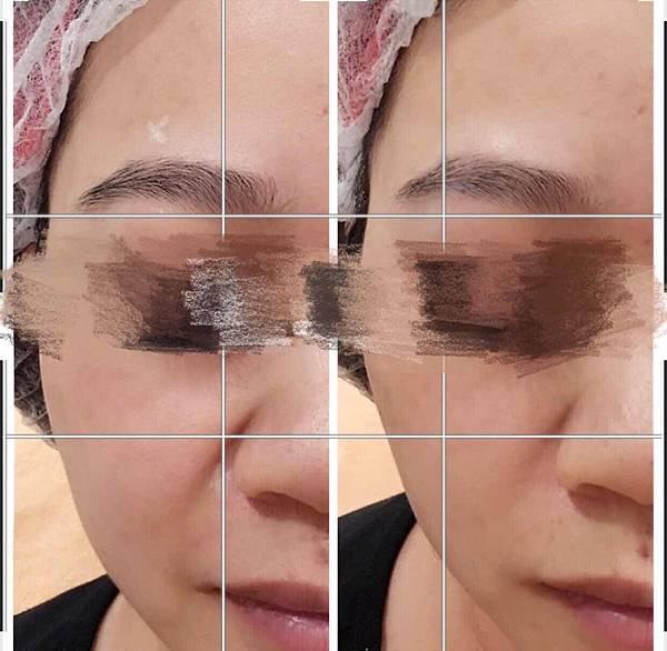 微整形不一定要花很多時間,僅用1cc玻尿酸改善嘴邊肉、法令紋跟調整眉毛高度
