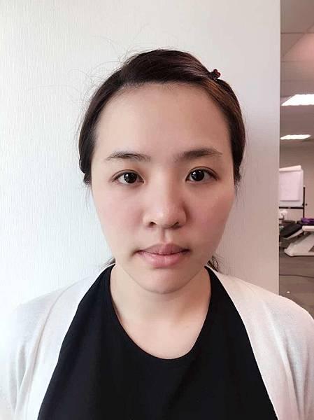 透過用玻尿酸拉提進行微整形,有沒有發覺臉頰變得更緊緻了呢?