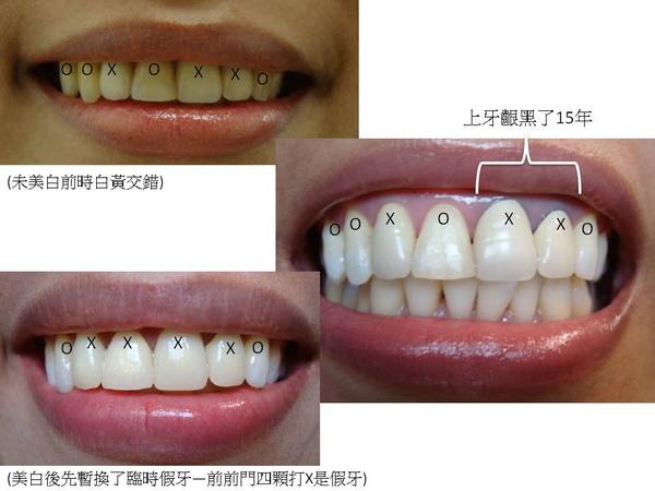 牙齒美白及假牙套製作過程