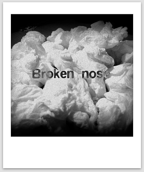 2010.8.2-Broken nose.jpg