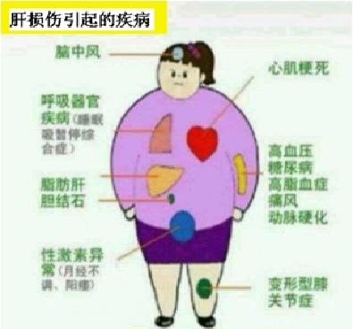 常見的肝損傷臨床症狀表現