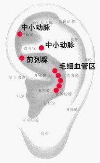 高血壓.jpg