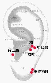 純性甲狀腺腫.jpg