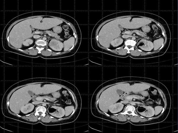Emphysematous Pyelonephritis.jpg