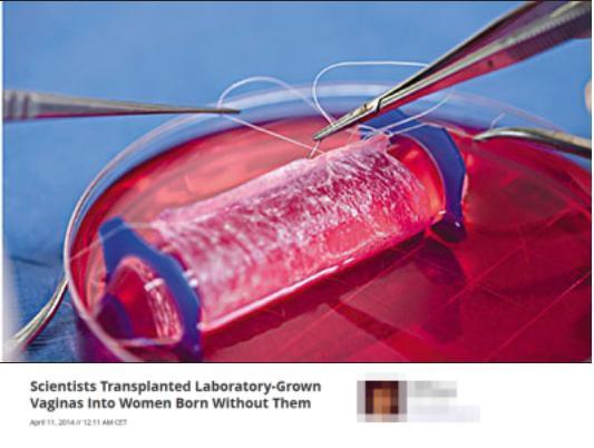 細胞培育人造陰道