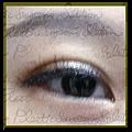 無疤眼頭手術-icon
