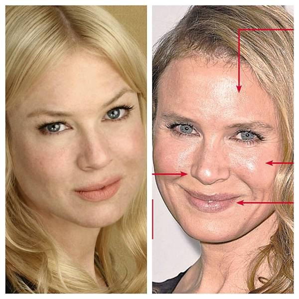 renee before after