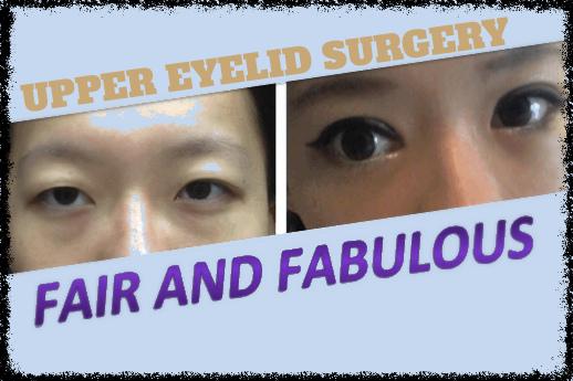 eyelid correct_Fotor