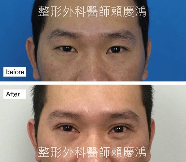 大哥重修雙眼皮