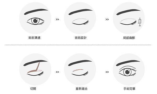 0820活動-歐美混血雙眼皮療程-切-14.jpg