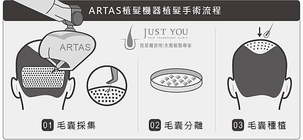 ARTAS植髮機器手術過程-01.jpg