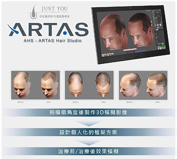 ARTAS植髮機器-2-01.jpg