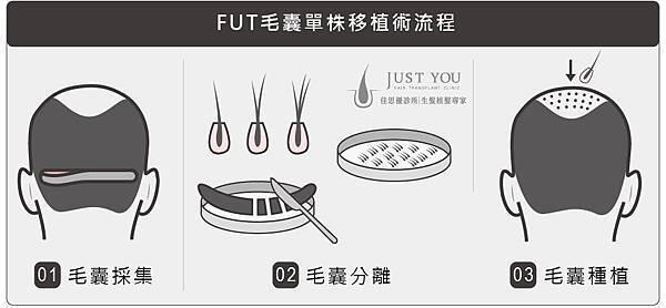 FUT植髮手術過程-01.jpg