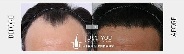 FUT植髮手術術前術後-01.jpg