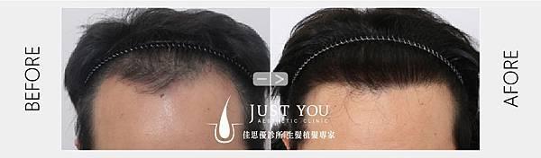 寇約翰植髮手術術前術後-01.jpg