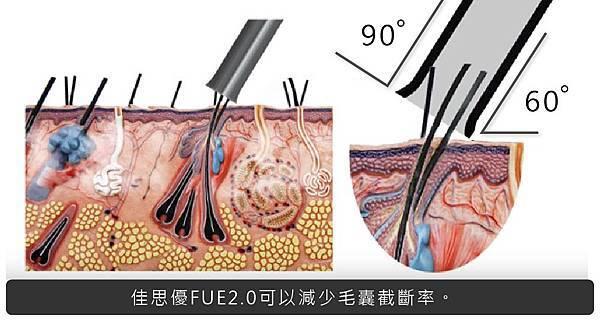 FUE2.0植髮-1-01.jpg