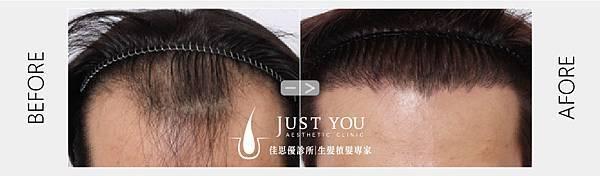 FUE2.0植髮手術術前術後-01.jpg