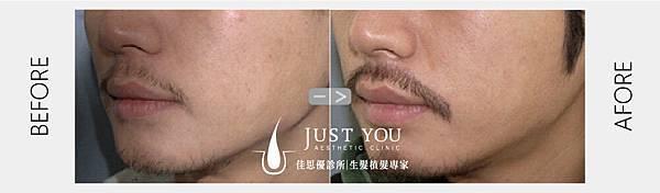 鬍子術前術後-01.jpg
