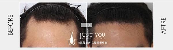 FUE植髮手術術前術後-01.jpg