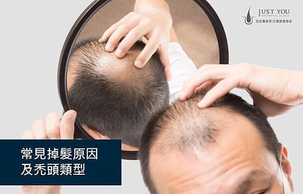 20190410-常見掉髮原因_主視覺圖.jpg