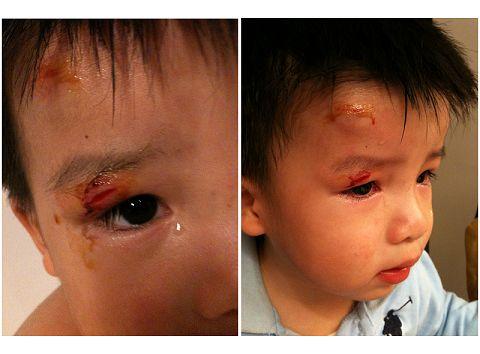 2歲4個月在家撞到