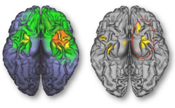 智能手機改變大腦形狀