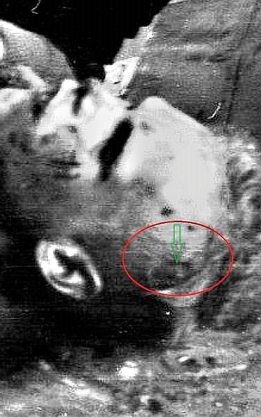 3 Thibeaux-Brignolles 頭骨破裂