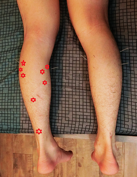 小腿肌激痛點