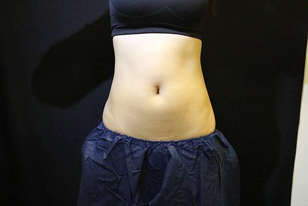 林宜妏 104-3-26 冷凍溶脂-腹部 術前(2).JPG