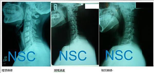 頸椎X光影像