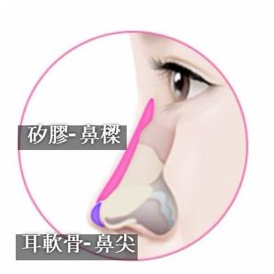 nose_1zh.jpg