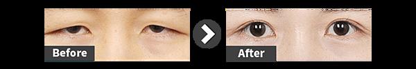 img-eyes-cut-6-768x128.png