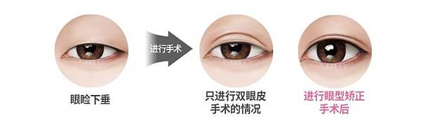 img-eyes-cut-4-768x229.jpg
