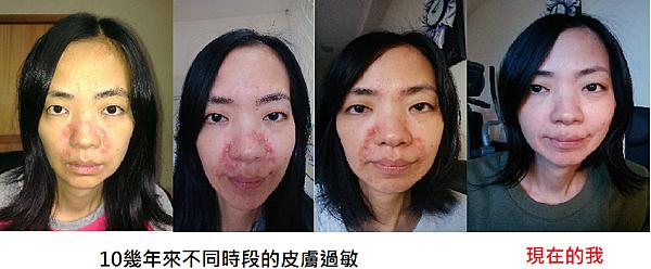 皮膚過敏演進.png