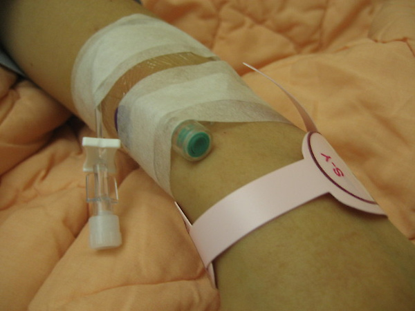 20091230甲狀腺結節腫切除03