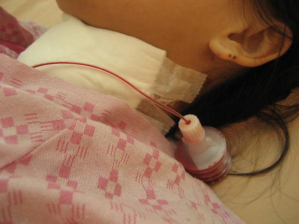 20091230甲狀腺結節腫切除06