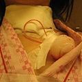 20091230甲狀腺結節腫切除08