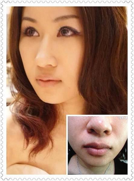 左為術後一個月.右下為原始唇色