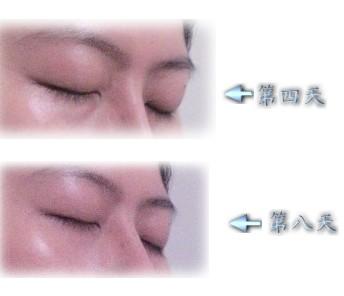眼部側面比較.jpg