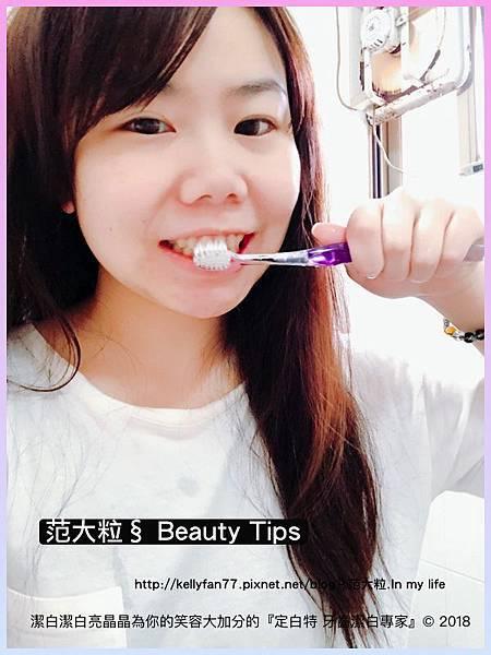定白特 牙齒潔白專家07.jpg