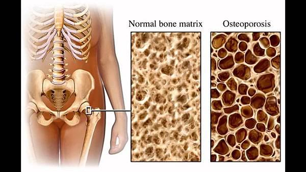 骨骼疏鬆症.jpg