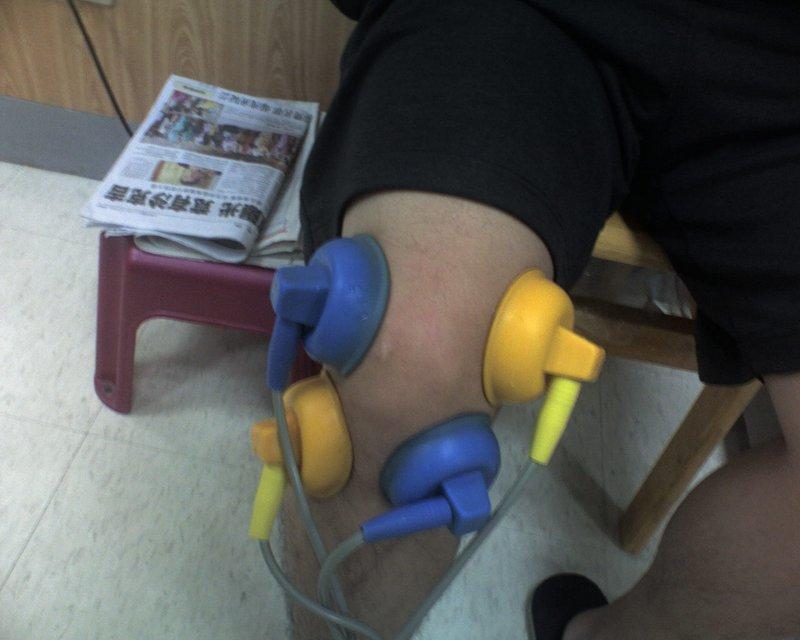 膝蓋電療_1